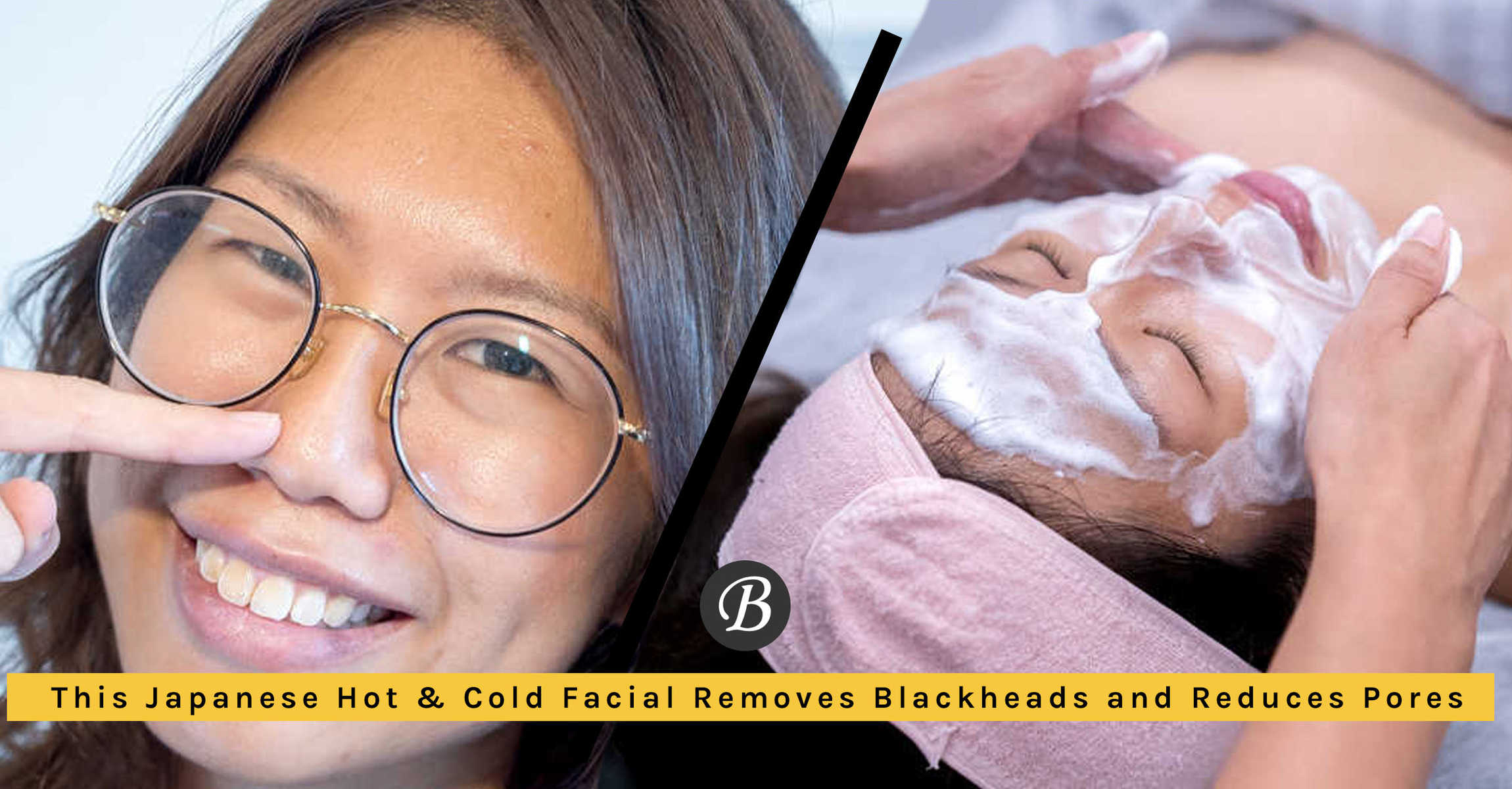 This Hot And Cold Japanese Facial Helps To Remove Blackheads Without Extraction