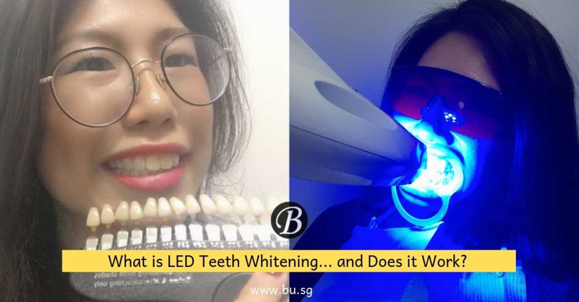 What is LED Teeth Whitening? Agent G Gives You Her Unbiased Review