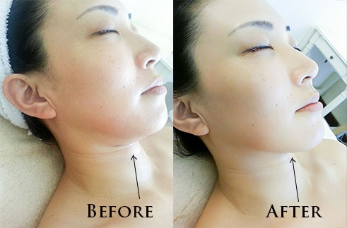 Queen S Market Tanjong Pagar Best Nail And Facial