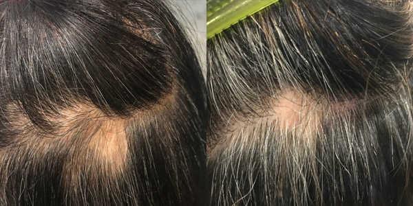 Black hair scalp problems